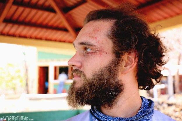#Cerro Negro_Neil wounded2